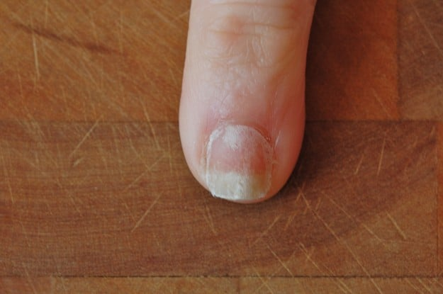 How to Mend a Broken Fingernail | The Art of Doing StuffThe Art of