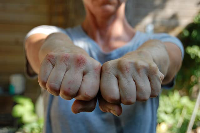 cob-oven-bleeding-knuckles