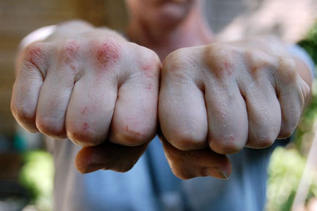 Close up shot of hands clenched into fists, knuckles bleeding with abrasions.