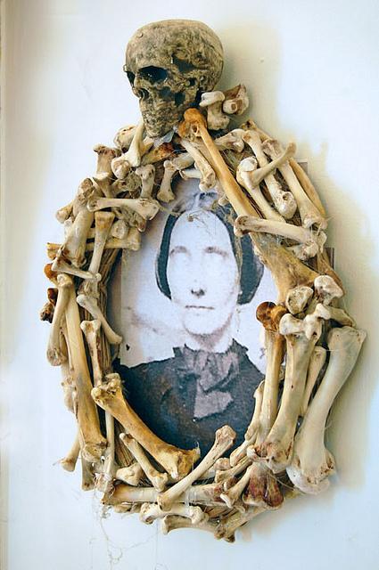 Bone Frame