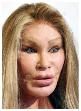 Celebrity Plastic Surgery Gone Wrong