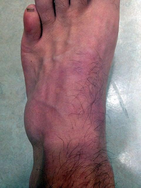 Foot Fracture 4