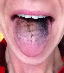 black-tongue