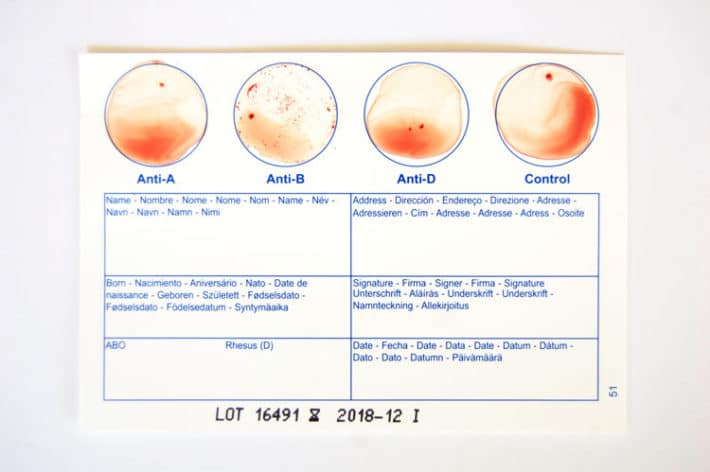 Test results on at home blood group test card showing B-.