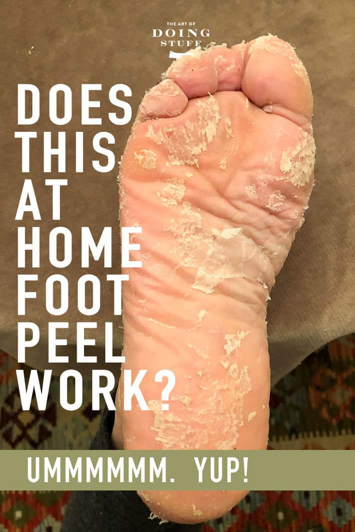 How All The Skin Peeled Off Of My Feet Home Pedicure Review