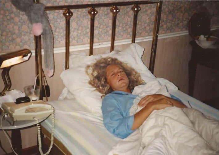 17-year-old Karen Bertelsen lying in bed with swollen cheeks after having her wisdom teeth removed. Her recently permed hair covers her white pillow. Wallpaper featuring a small floral pattern can be seen in the background.